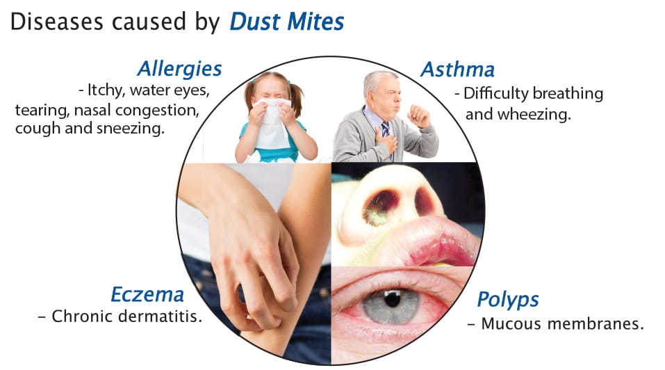 Info display details of dust mite allergies