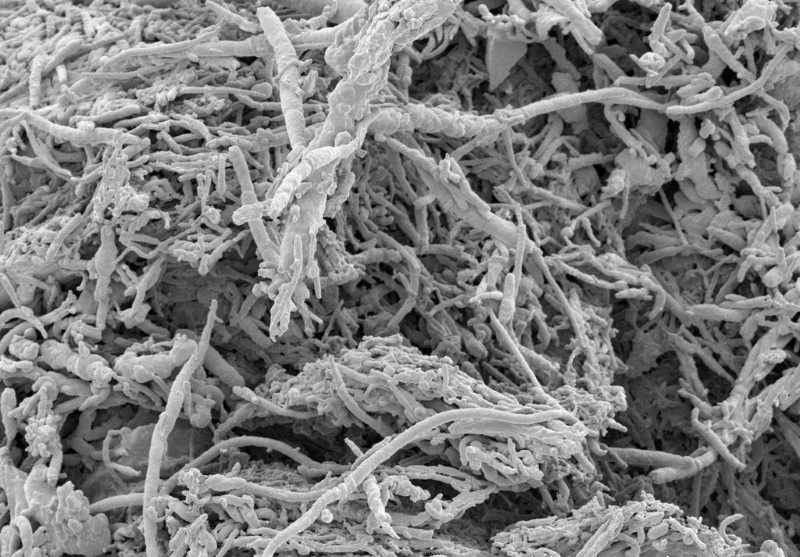 Image of household dust under a microscope