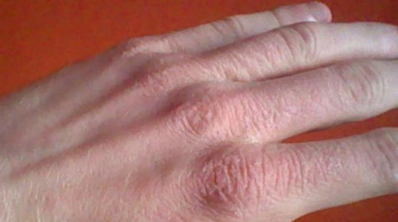 Image of dry hand skin cracking due to dry air