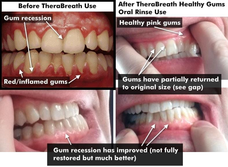 Image collage showing before and after using TheraBreath Healthy Gums oral rinse & toothpaste
