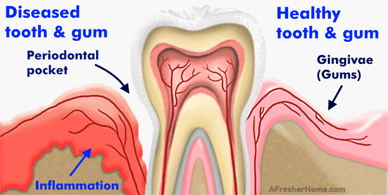 Diagram showing gum disease periodontitis from gingivits